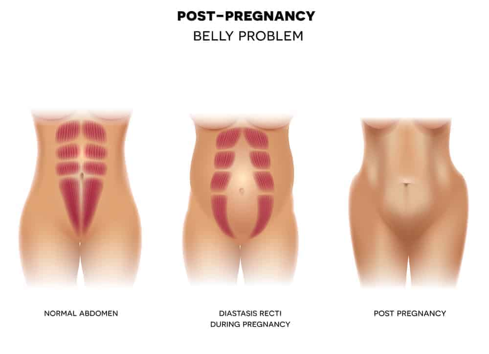 Postpartum body changes and care tips, diastasis recti